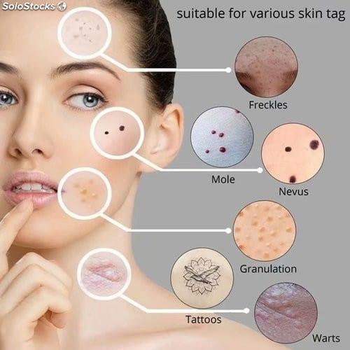 Como limpiar manchas de la piel